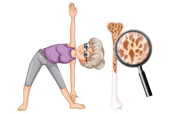 OsteoporozaVadba2019